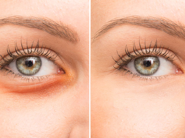 Castor Oil Eye Benefits Include Treating Redness, Puffiness and helping lashes grow